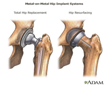 Metal On Hip Implant